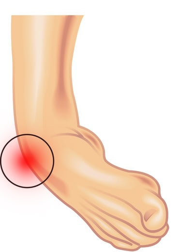 Ankle pain and ankle instability illustration