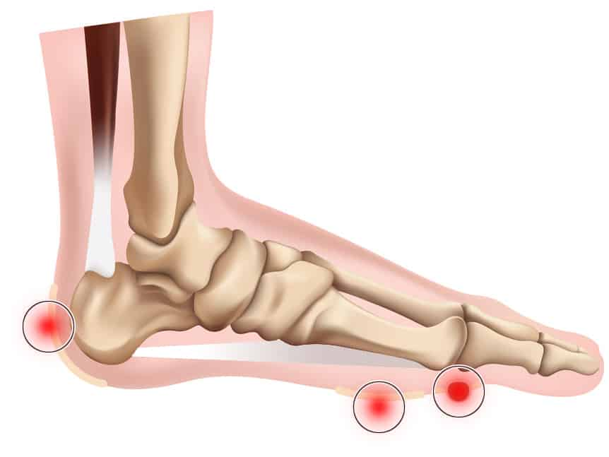 Foot pain illustration - foot corn and calluses