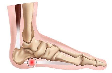 Plantar Fasciitis and Plantar Fasciitis treatment