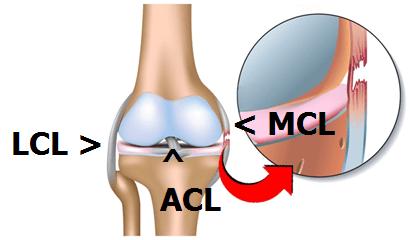 Avantages d'une attelle de genou pour les blessures sportives - MCL LCL ACL