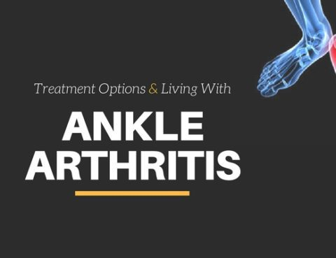 ankle arthritis treatment options