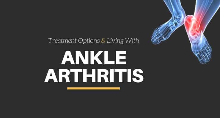 ankle arthritis treatment options